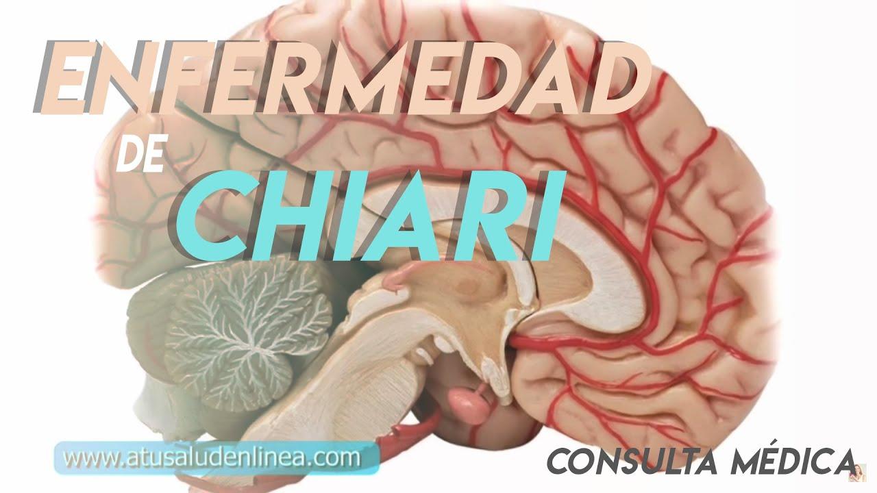 sistema nervioso central erkrankungen síntomas de diabetes