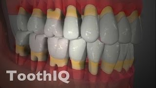 treatment of periodontal disease scaling and root planing