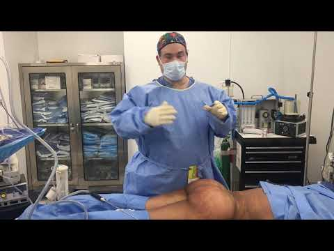 Another Fabulous Result with the Brazilian buttlift with Dr. Hughes in Los Angeles