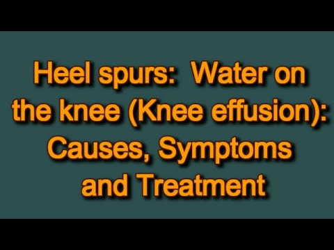 water-on-the-knee-(knee-effusion):-causes,-symptoms-and-treatment
