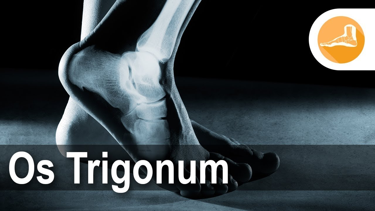 Os Trigonum With Dr Erik Nilssen Youtube