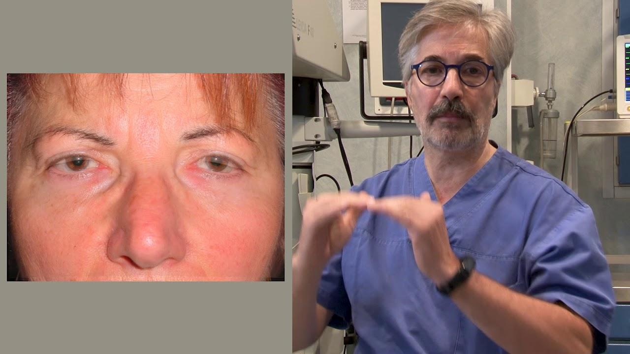 9 митове за лечение на псориатичен артрит