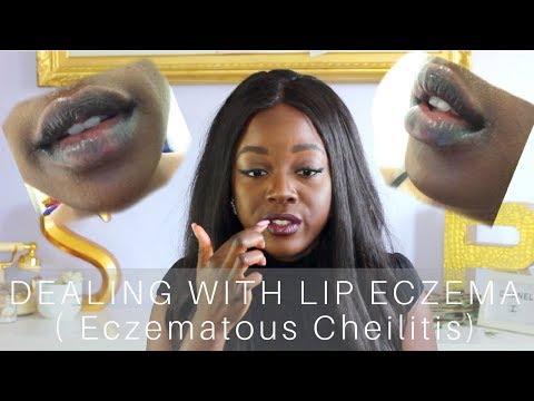 Dealing With | Eczematous Cheilitis Lip Eczema
