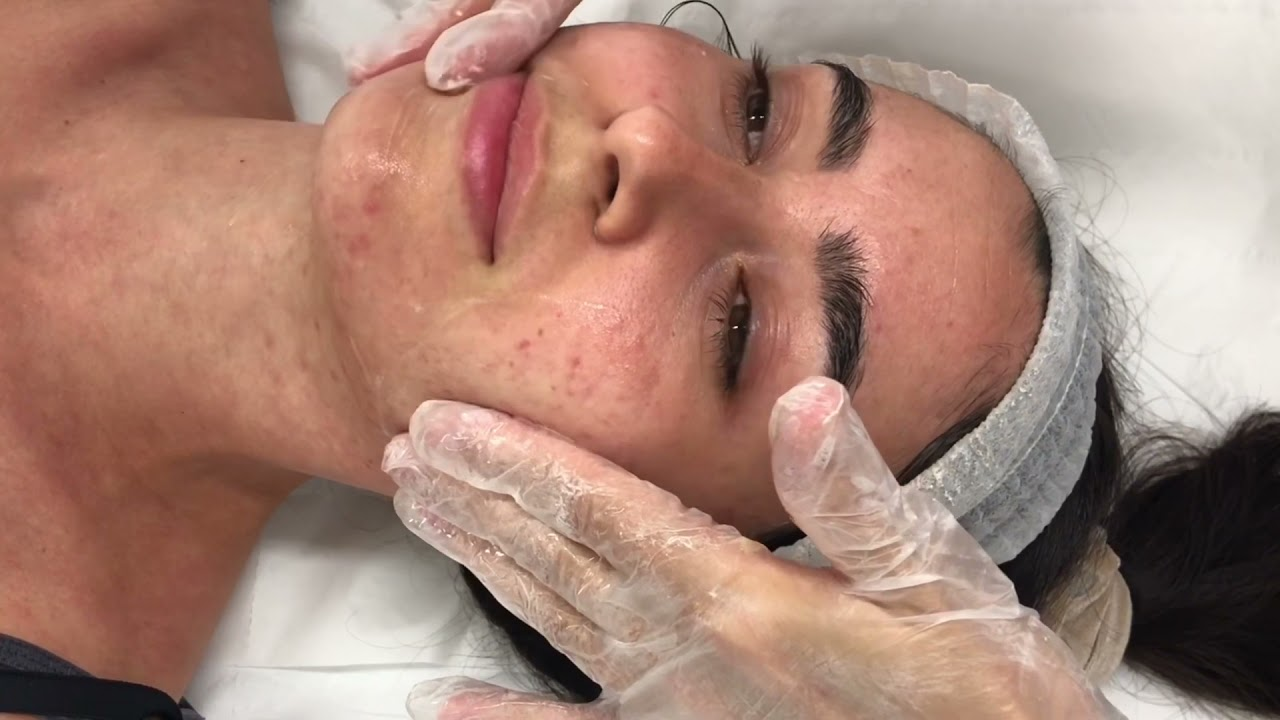 Welcoming Our NEW Microneedling Treatment