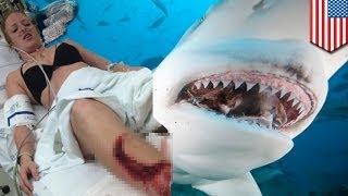 Repeat youtube video SHARK ATTACK! Babae, nakagat habang lumalangoy sa Florida!