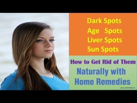 brown spots on face home remedies