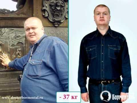 Подтяжка кожи при похудении. Доктор Борменталь Пенза.