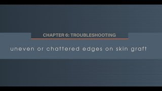 Chapter 6.1 Uneven or Chattered Edges on Skin Graft