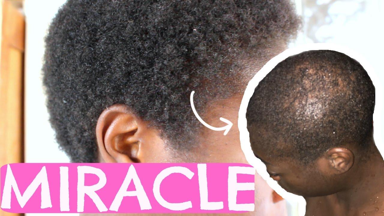 traitement alopécie cheveux afro