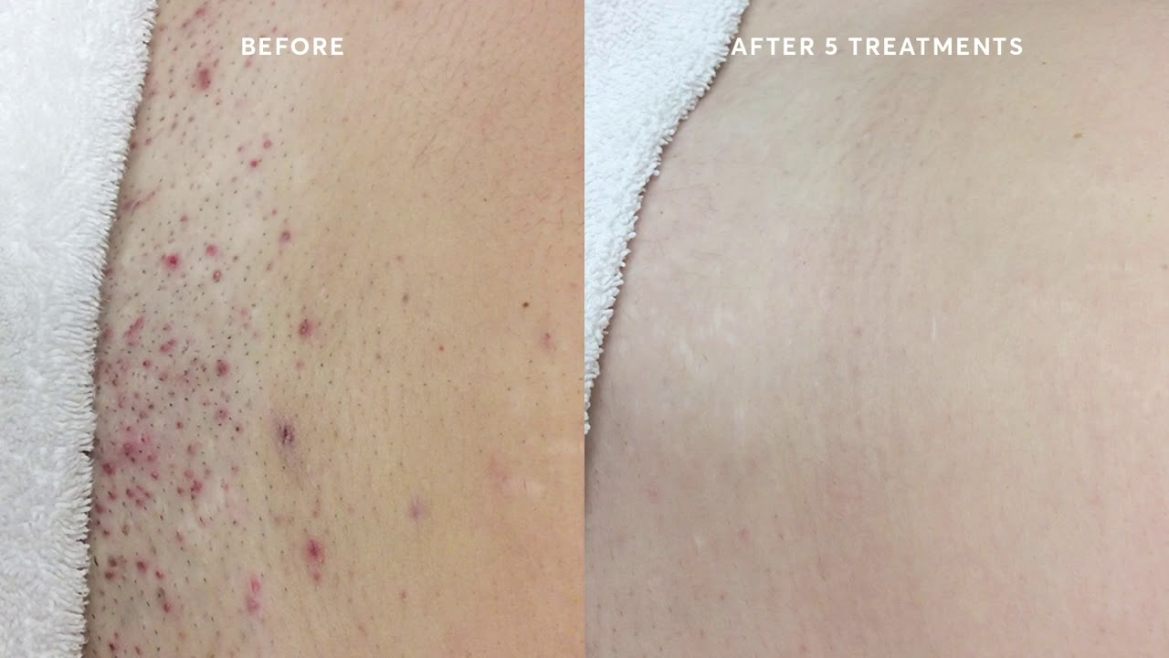 Reduction Of Ingrown Hairs After Laser Hair Removal Youtube