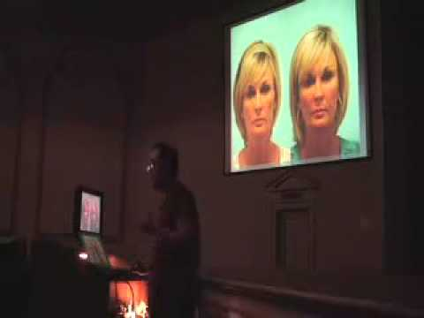 Fat Grafting Refinements, Advanced Techniques in Facial Rejuvenation, Nov. 20, 2009
