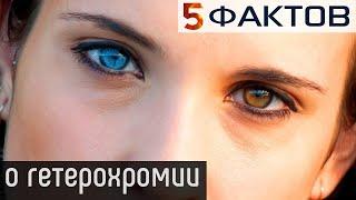 5 фактов о ГЕТЕРОХРОМИИ, чтобы знать и НЕ БОЯТЬСЯ!