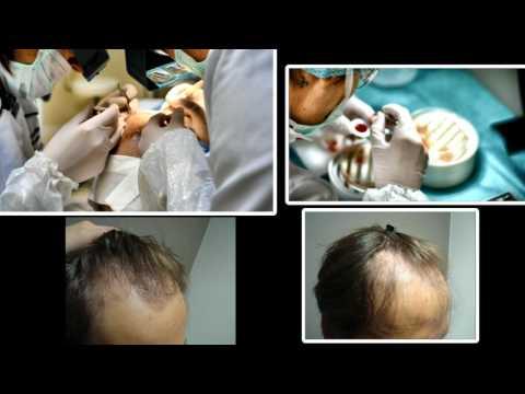 Repairing failed hair transplantation