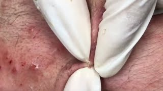 Extracting Blackheads and Whiteheads on Face Blackheads Whiteheads Satisfying video