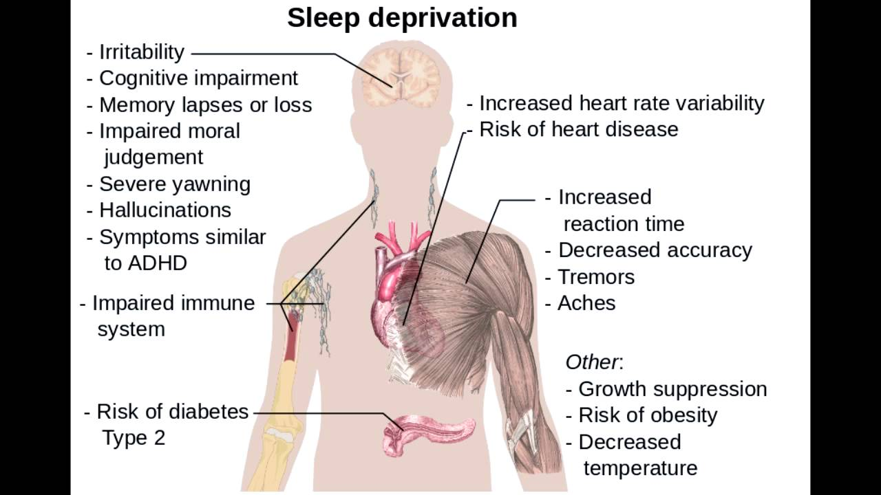 the importance of sleep and the health impact of sleep deprivation in humans Sleep-related health why is sleep health important sleep and sleep deprivation: an unmet public health impact of sleep and sleep loss on.