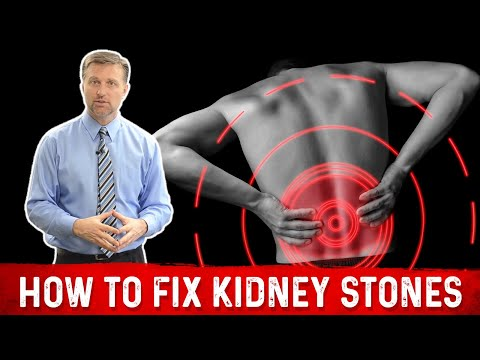 hqdefault - What Causes A Kidney Stone Attack