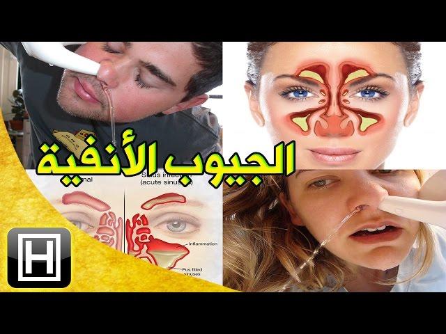 علاج التهاب الجيوب الأنفية وتنقية مساراتها والتخلص من حساسية الأنف نهائيا Youtube
