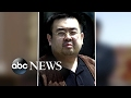 Kim Jong Nam was exposed to nerve agent: police