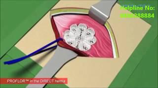 3D Mesh Repair for Inguinal Hernia by Dr Ashwin Porwal