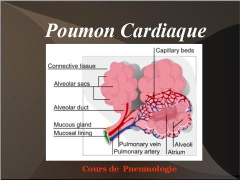 Poumon Cardiaque: Oedeme aigu du poumon Physiopathologie