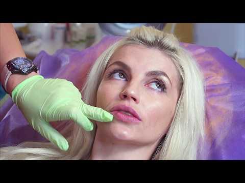 Увеличение губ филлером ДО И ПОСЛЕ. Гиалуроновая кислота 1 мл