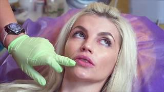 видео Увеличение губ филлерами