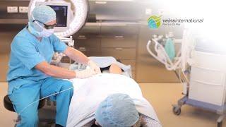 KRAMPFADERN ENDOLASER PROF FLOR(PROF FLOR verwendet seit 2001 Laser zur Behandlung der Krampfadern (Varizen). Gesunde und schöne Beine sind das Ziel., 2012-10-31T13:31:36.000Z)