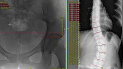 Scoliosis from Leg Length Inequality - seen on x-ray