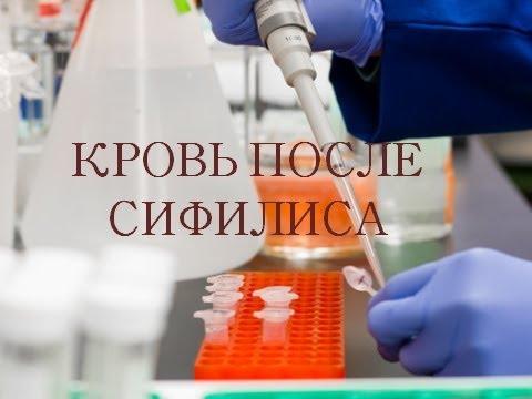 Капли для ногтей Клотримазол: инструкция по применению и отзывы о результатах лечения