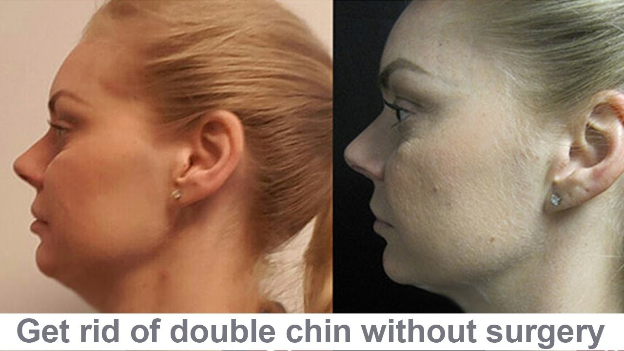 6 Things You Need to Know About Kybella