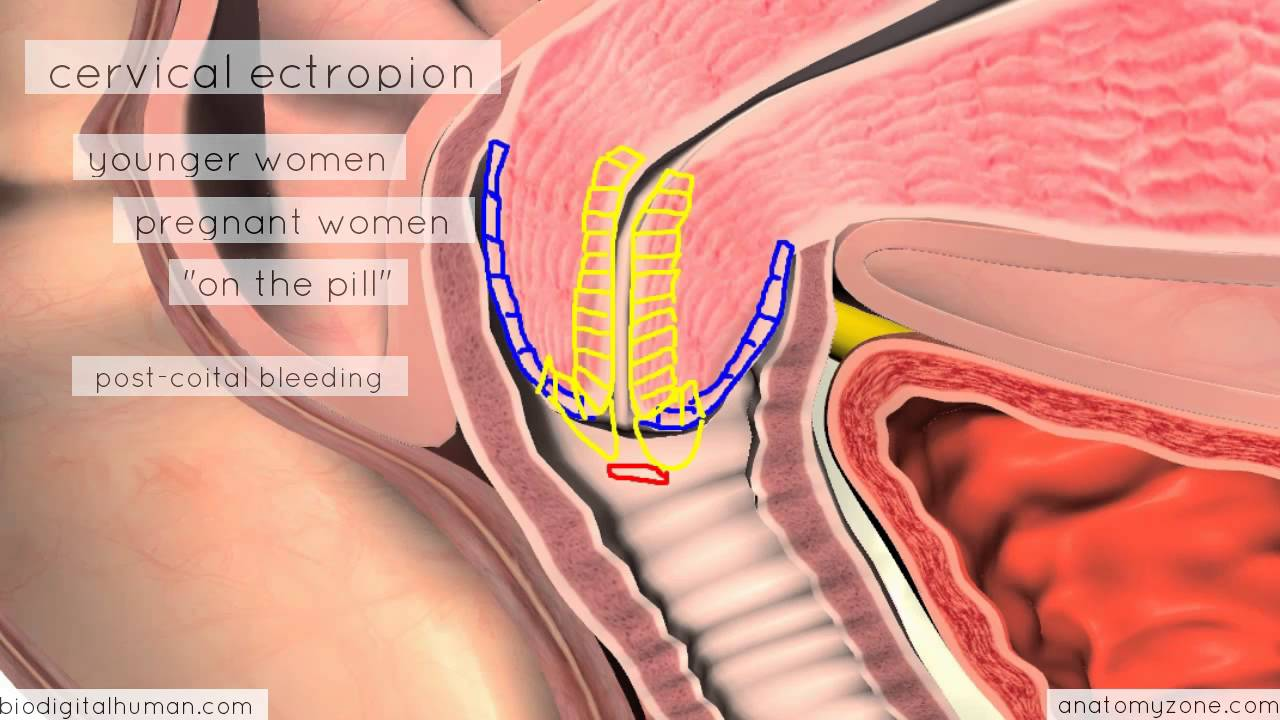 Clinical Reproductive Anatomy - Cervix - 3D Anatomy Tutorial - YouTube