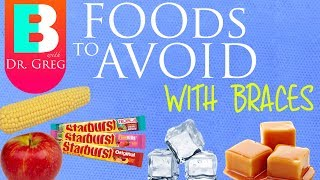 Foods to Avoid with Braces and Why