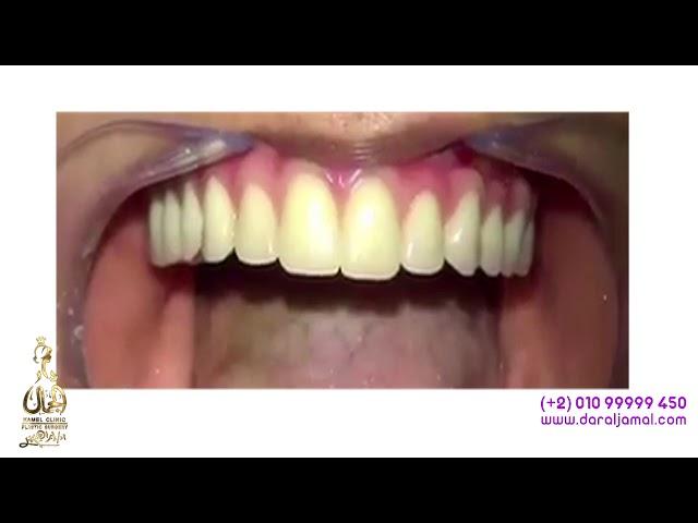 لايف علمية #زراعة_الاسنان من داخل دار الجمال