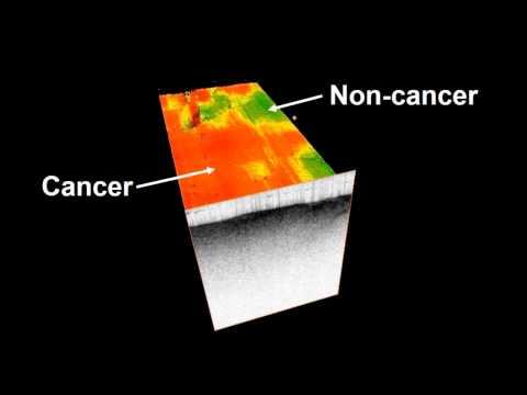 Brain Imaging Technique