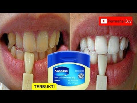 Hanya Dalam 3 Menit Gigi Kuning Menjadi Putih Bersinar