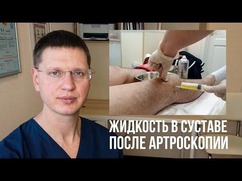 После артроскопии болит под коленом