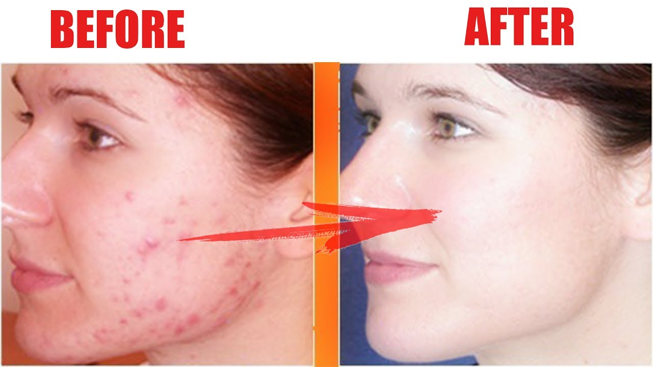 How To Get Rid Of Acne Scars Pimple Marks Fast And Naturally Youtube