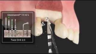 Зубные импланты шведского концерна ASTRA(Концерн ASTRA вовлечен в развитие стоматологической и медицинской наук. ASTRA имеет давние традиции в области..., 2013-05-22T05:10:38.000Z)