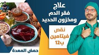 ٥٠- علاج الانيميا الحاده وفقر الدم بدون دواء_ رفع خزان الحديد _ فيتامين ب١٢