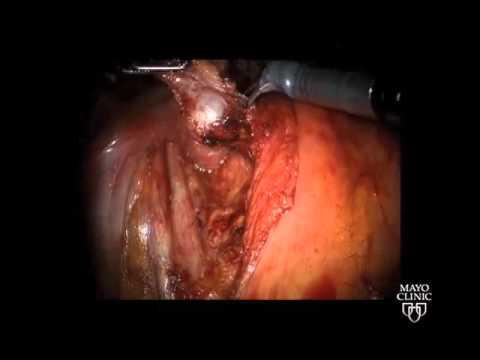 Cyst of anus