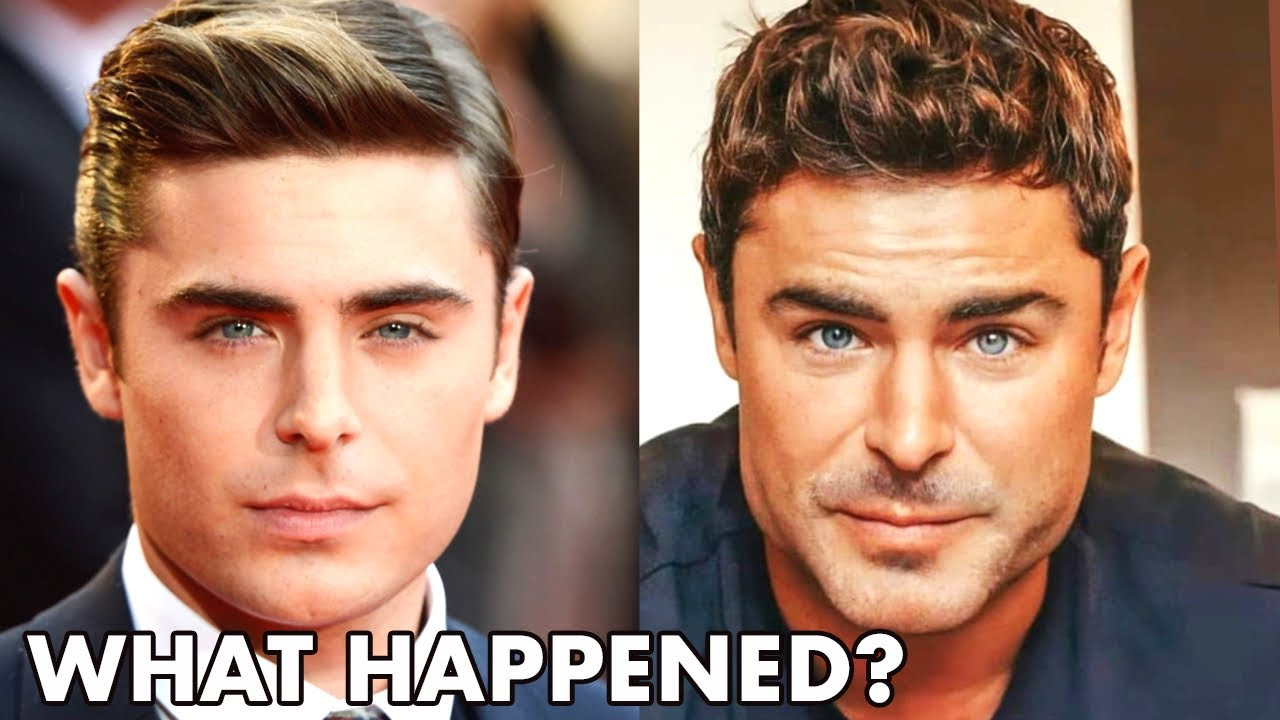 Zac Efron - New Face, Why He Looks SO DIFFERENT…(2021) - Plastic Surgery Analysis