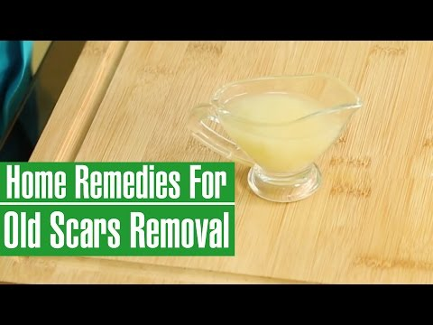 how-to-remove-old-scars-from-legs-&-face---natural-scar-removal