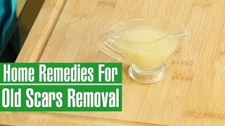 3 Magnificent Home Remedies To Remove Old Scars
