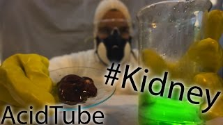 Acid vs Kidney | AcidTube