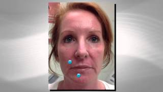 Facial Fillers - Before and After Video