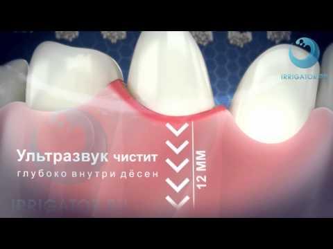 Как работает ультразвуковая зубная щетка Emmi-dent 6