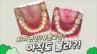 [부산디자인치과] 치아 견인 & 부분 교정 전후…