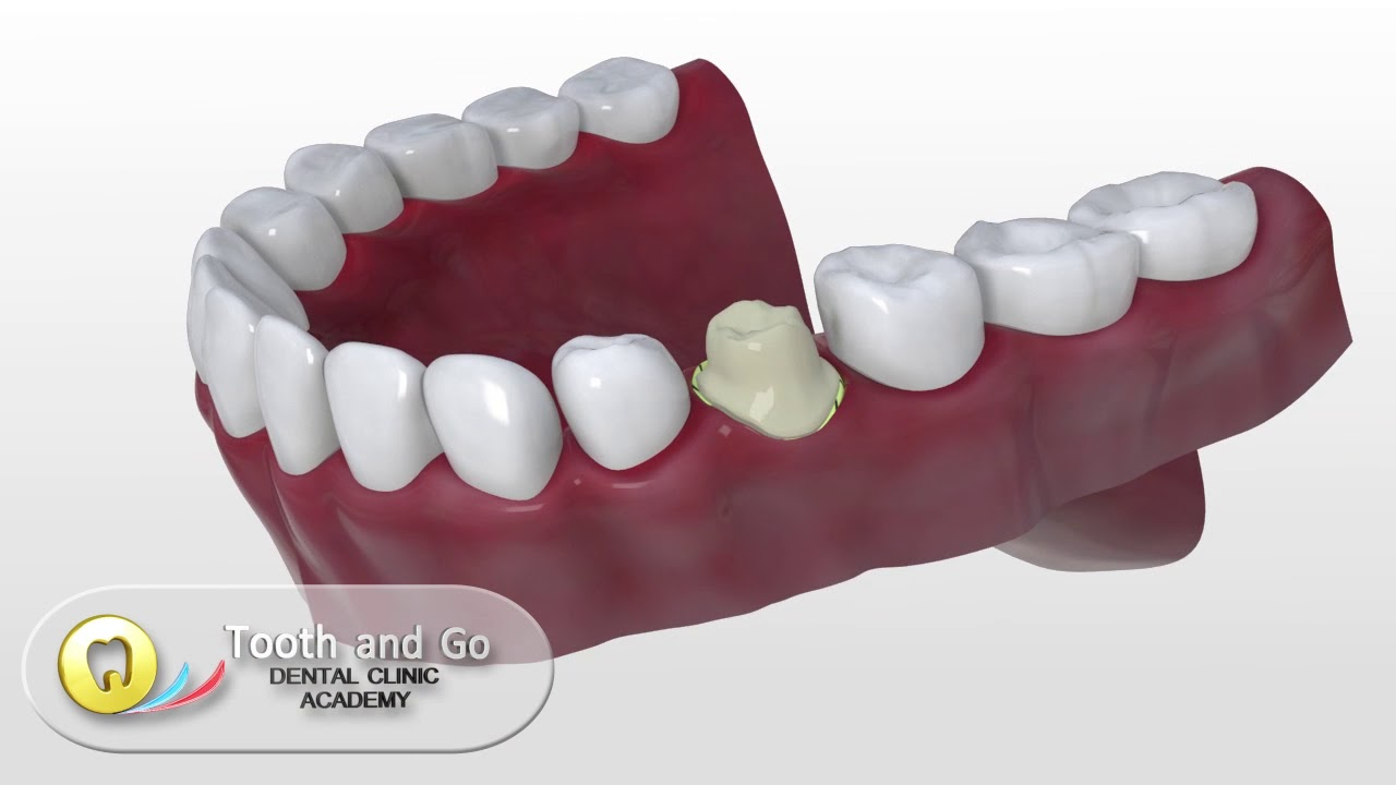 Cerec -the ultimate chair side Cad Cam Technology - now also in the  Philippines!