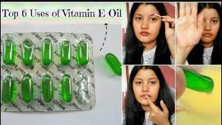 ভিটামিন E কেপসুল খেলে কি কি হয় জানলে অবাক হবেন এবং এর কাজ কি?How To Eat Vitamin E!? Beauty & Lovely