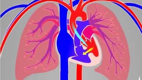 정상심장과 심실중격결손증의 혈액순환 비교